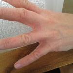 Marly Skin biedt bescherming tegen handeczeem ten gevolge van reinigingsmiddelen